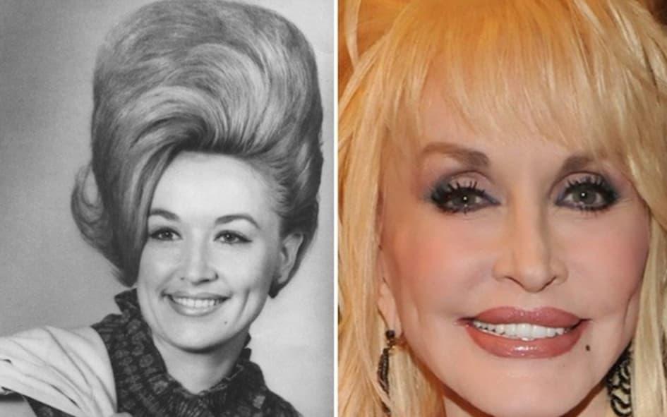 La Chanteuse Dolly Parton Est Âgée De 73 Ans
